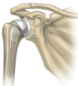 Illustrated image of a shoulder replacement in skeleton.